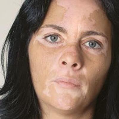 Vitiligo Non-Segmentario
